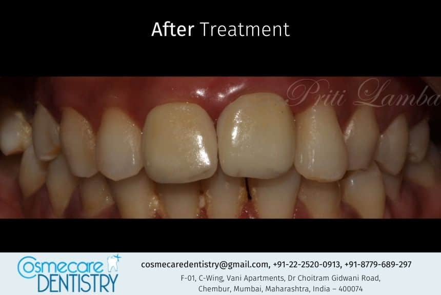 Root Canal Treatment followed by Correction and Smile Designing