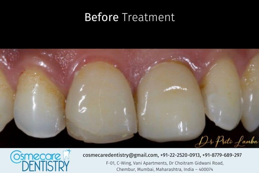 Broken Veneer and Uneven Tooth Surface on Front Tooth