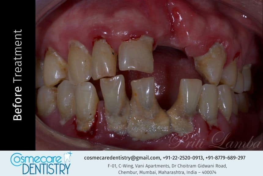 Missing Front Tooth with Broken and Attrited Tooth
