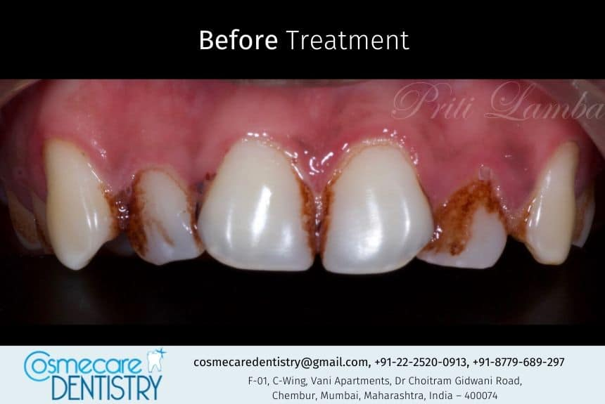 Malaligned Stained Front Tooth Case