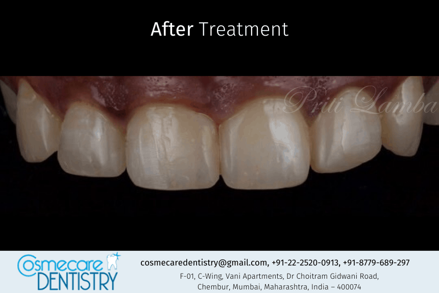 After the treatment we at Cosmecare Dentistry fixed the Gaps and Food Lodgement problem of the Patient at Dental Clinic in Chembur
