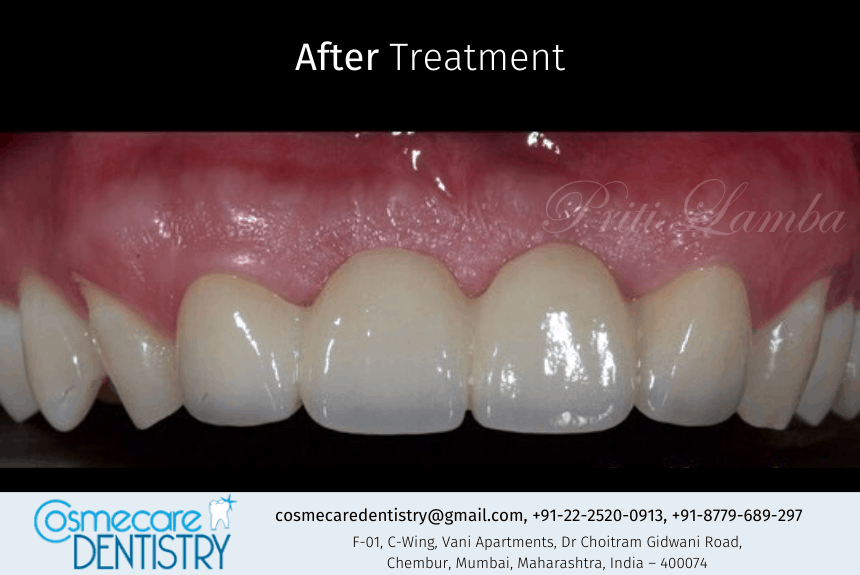 Fixed and Corrected new bridge at Cosmecare Dentistry - After images - Dental Clinic in Chembur