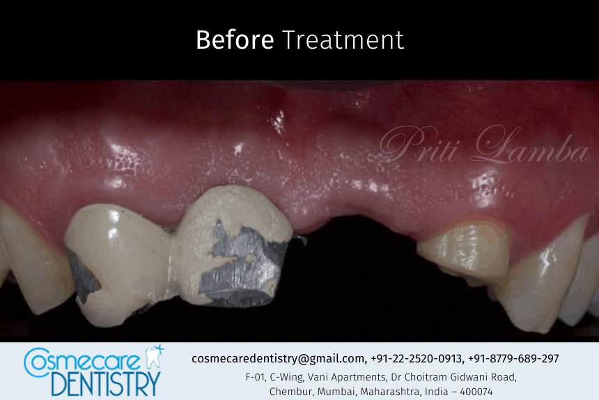 Missing tooth and faulty dental bridge correction at Dental Clinic in Chembur - Cosmecare Dentistry - Before