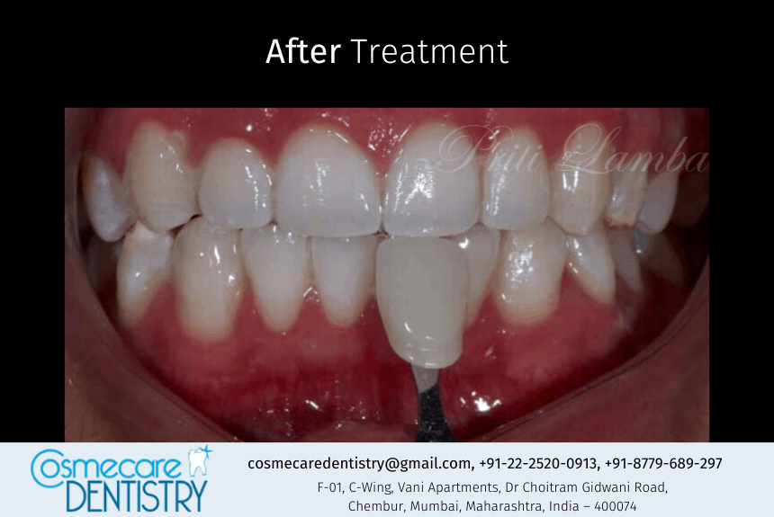 This was how we treated the patient by giving Teeth Whitening using Zoom Bleaching at Cosmecare Dentistry - Dental Clinic in Chembur