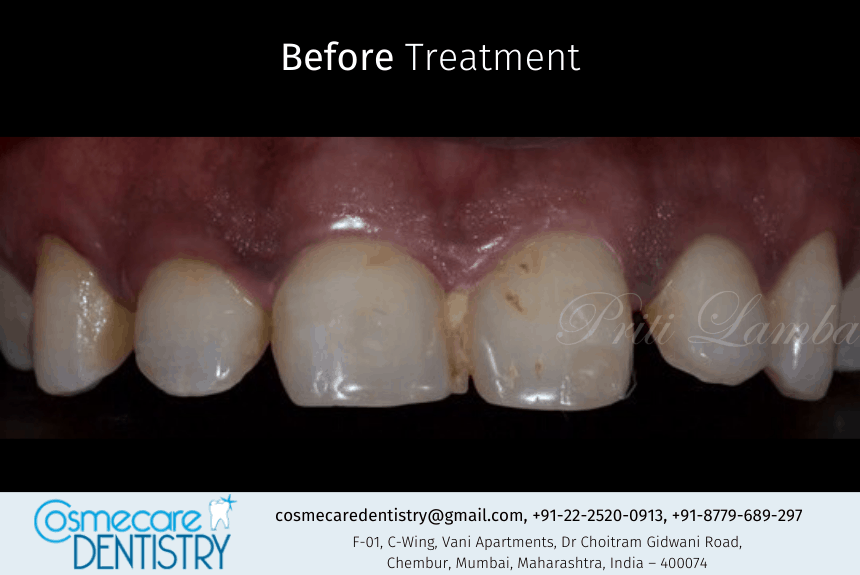 Before the treatment the patient came with gaps and food lodgement in front tooth region at Dental Clinic in Chembur